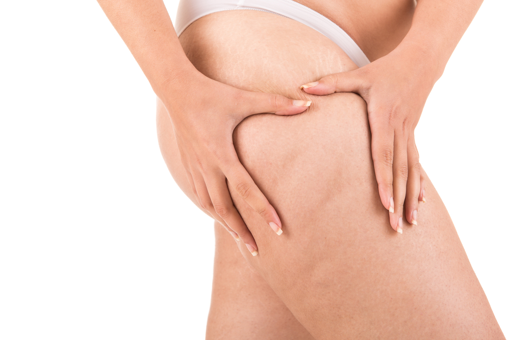 Eat Away Your Cellulite