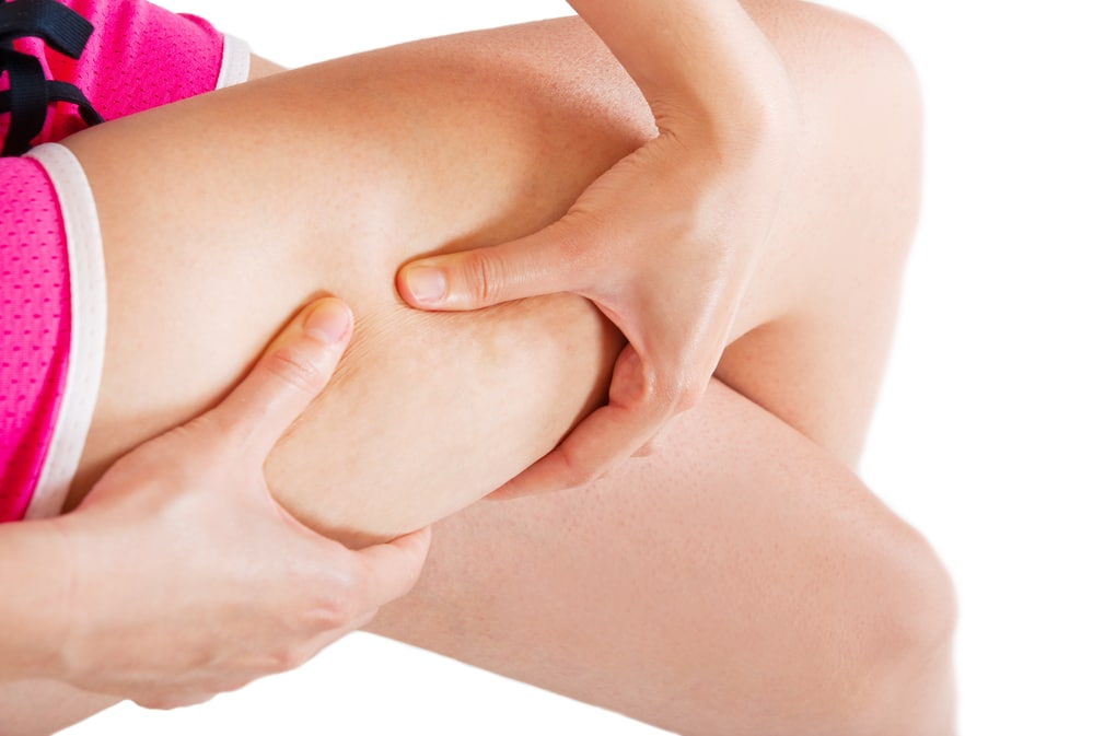 10 Ways to Get Rid of Cellulite Naturally